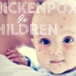 Treating Chickenpox in Children: Things to Keep in Mind